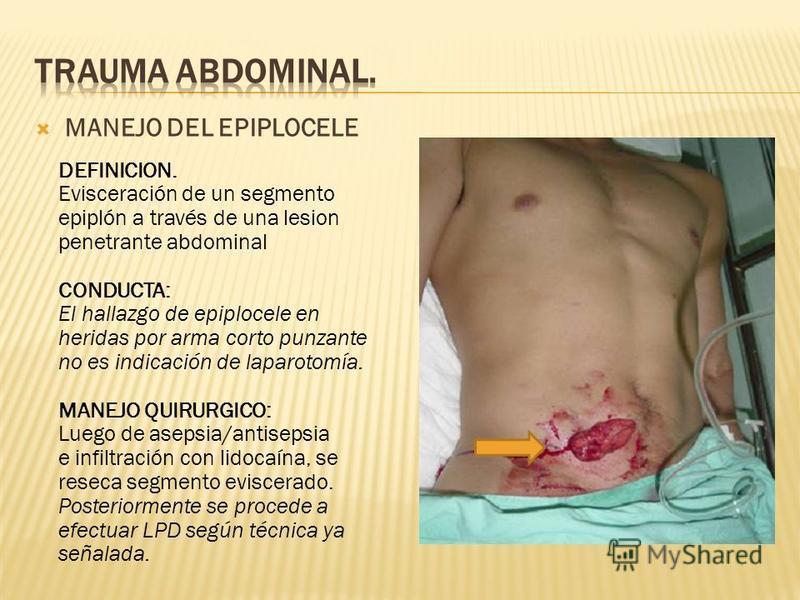 MANEJO DEL EPIPLOCELE DEFINICION. Evisceración de un segmento epiplón a través de una lesion penetrante abdominal CONDUCTA: El hallazgo de epiplocele en heridas por arma corto punzante no es indicación de laparotomía. MANEJO QUIRURGICO: Luego de asep