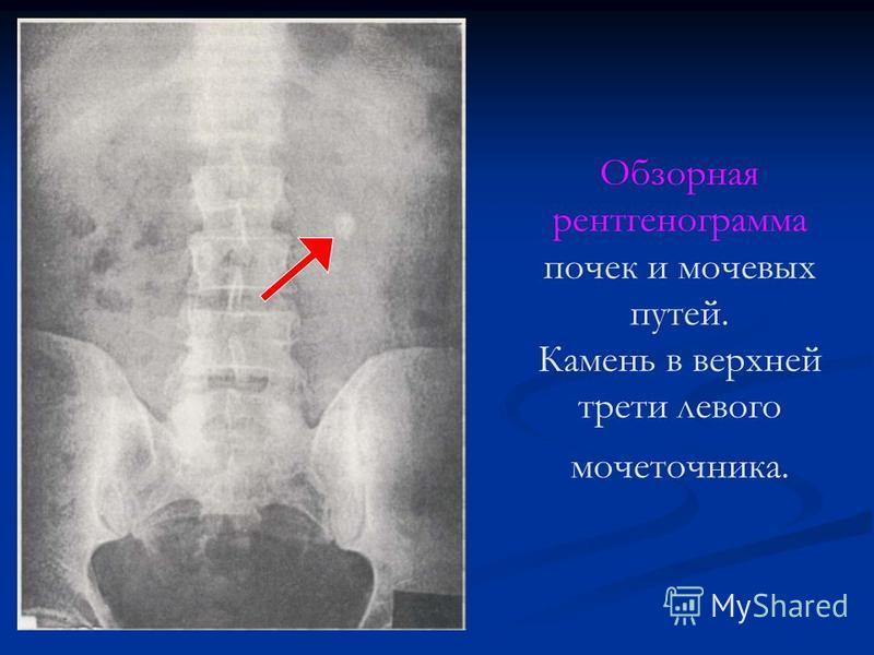 Обзорная рентгенограмма почек и мочевых путей. Камень в верхней трети левого мочеточника.