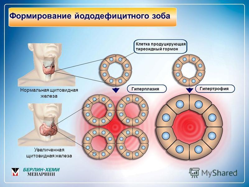 17 Формирование йоддефицитного зоба Нормальная щитовидная железа Увеличенная щитовидная железа Гиперплазия Гипертрофия Клетка продуцирующая тиреоидный гормон