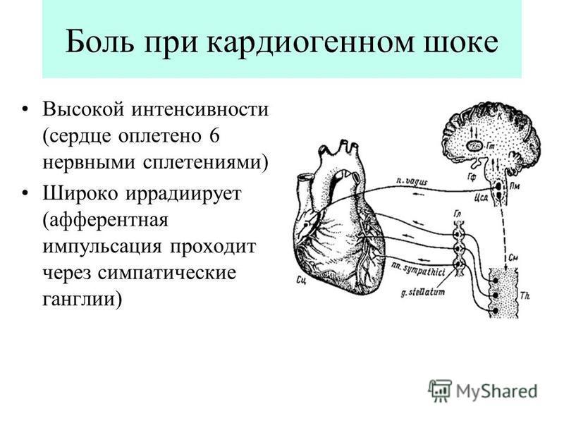 Боль при кардиогенном шоке Высокой интенсивности (сердце оплетено 6 нервными сплетениями) Широко иррадиирует (афферентная импульсация проходит через симпатические ганглии)
