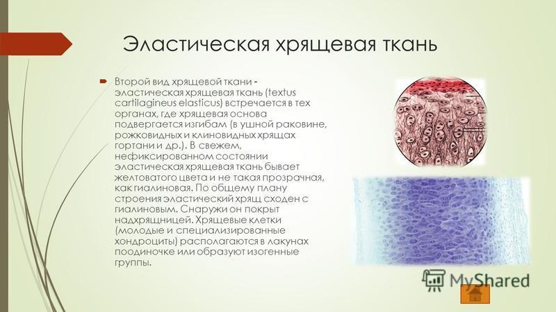 Эластическая хрящевая ткань Второй вид хрящевой ткани - эластическая хрящевая ткань (textus cartilagineus elasticus) встречается в тех органах, где хрящевая основа подвергается изгибам (в ушной раковине, рожковидных и клиновидных хрящах гортани и др.