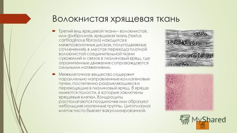 Волокнистая хрящевая ткань Третий вид хрящевой ткани - волокнистая, или фиброзная, хрящевая ткань (textus cartilaginous fibrosa) находится в межпозвоночных дисках, полуподвижных сочленениях, в местах перехода плотной волокнистой соединительной ткани