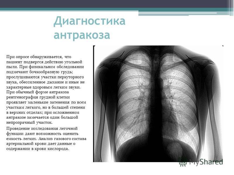 Диагностика антракоза При опросе обнаруживается, что пациент подвергся действию угольной пыли. При физикальном обследовании подмечают бочкообразную грудь; прослушиваются участки перкуторного звука, обессиленное дыхание и иные не характерные здоровым
