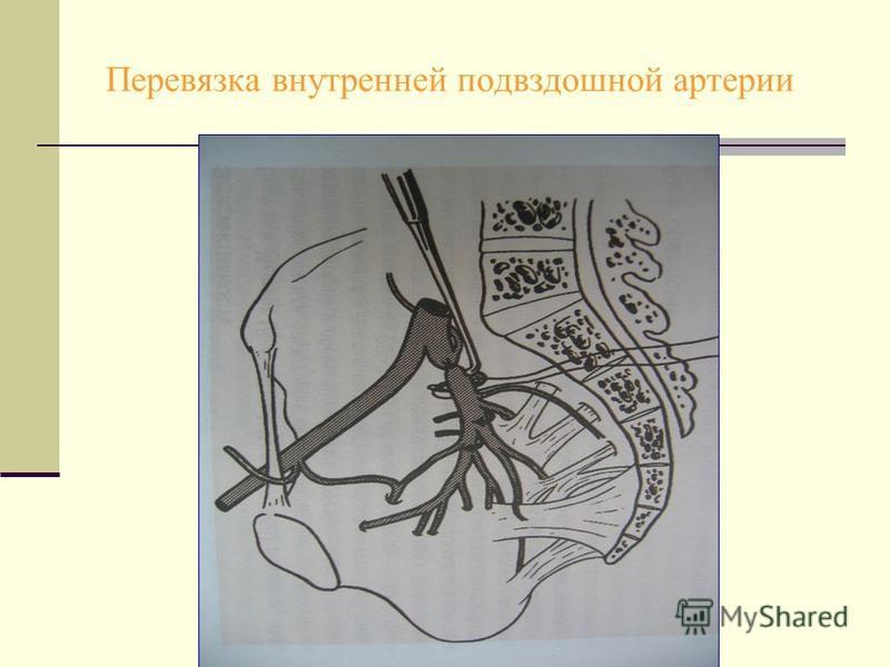 Перевязка внутренней подвздошной артерии