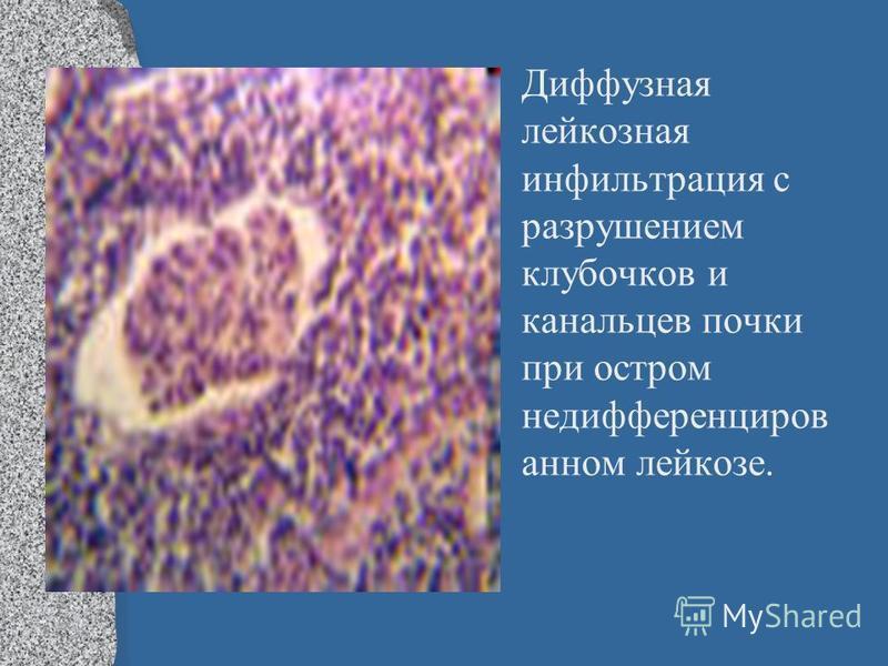 Диффузная лейкозная инфильтрация с разрушением клубочков и канальцев почки при остром недифференциров анном лейкозе.