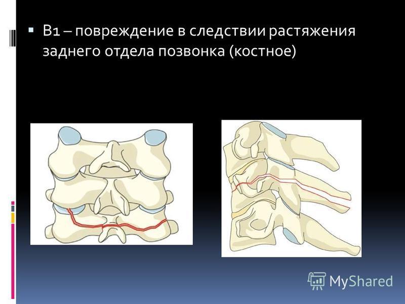 В1 – повреждение в следствии растяжения заднего отдела позвонка (костное)