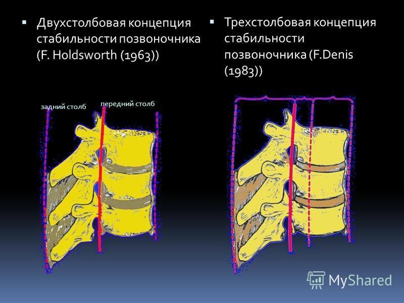 Двухстолбовая концепция стабильности позвоночника (F. Holdsworth (1963)) Трехстолбовая концепция стабильности позвоночника (F.Denis (1983)) задний столб передний столб