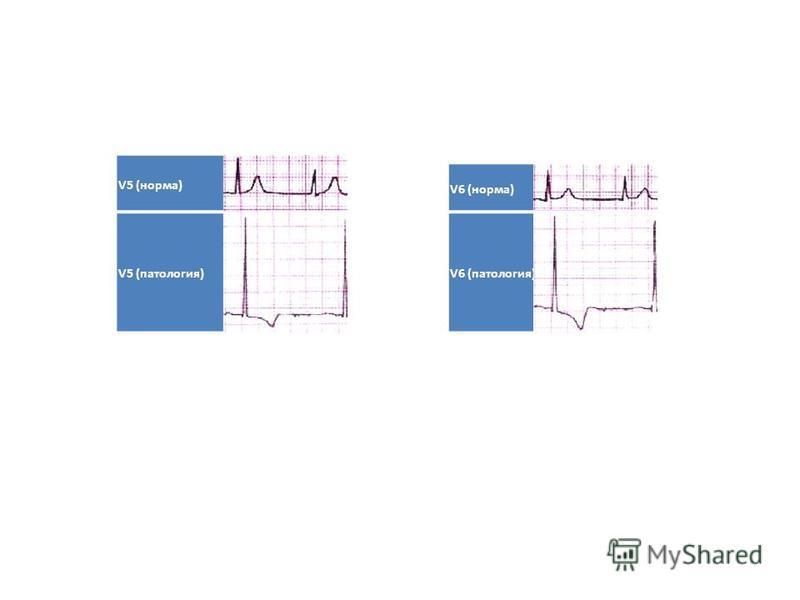 V5 (норма) V5 (патология) V6 (норма) V6 (патология)