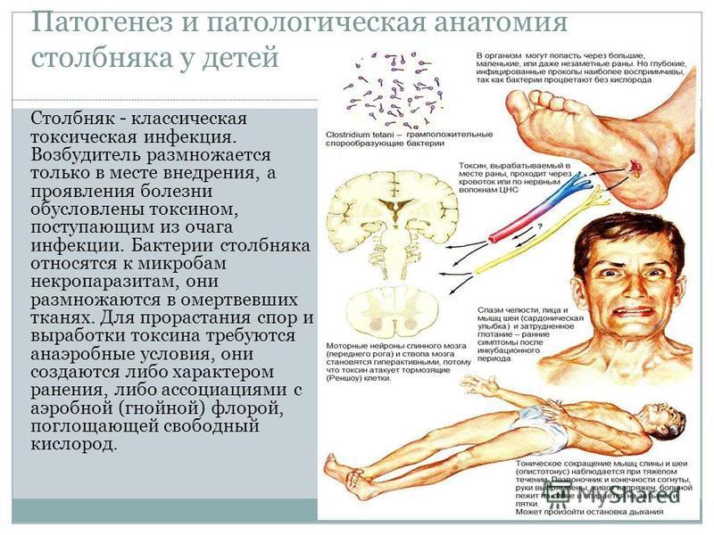 Патогенез и патологическая анатомия столбняка у детей Столбняк - классическая токсическая инфекция. Возбудитель размножается только в месте внедрения, а проявления болезни обусловлены токсином, поступающим из очага инфекции. Бактерии столбняка относя