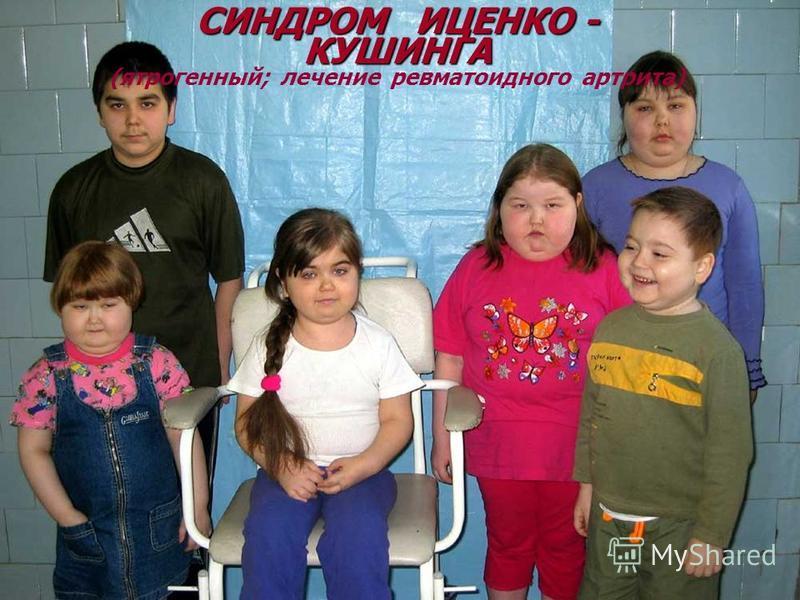 © П.Ф.Литвицкий, 2004 © ГЭОТАР-МЕД, 2004 СИНДРОМ ИЦЕНКО - КУШИНГА (ятрогенный; лечение ревматоидного артрита)