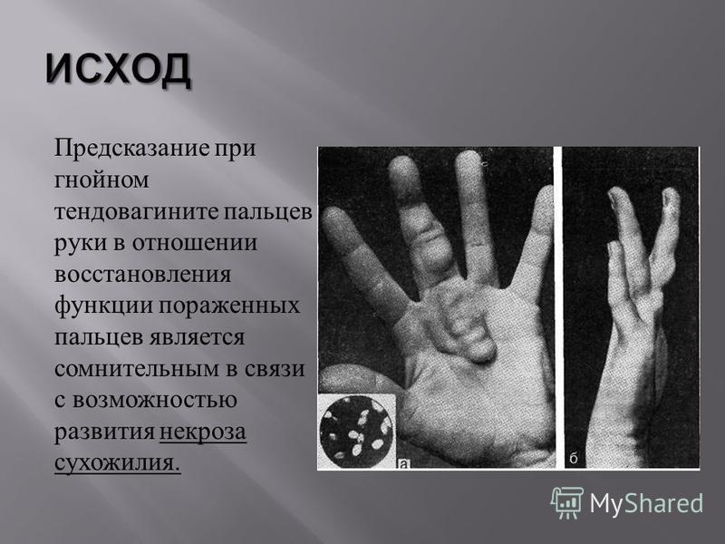 Предсказание при гнойном тендовагините пальцев руки в отношении восстановления функции пораженных пальцев является сомнительным в связи с возможностью развития некроза сухожилия.
