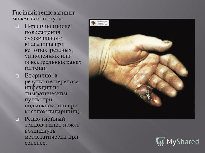 Гнойный тендовагинит может возникнуть : Первично ( после повреждения сухожильного влагалища при колотых, резаных, ушибленных или огнестрельных ранах пальца ); Вторично ( в результате переноса инфекции по лимфатическим путям при подкожном или при кост