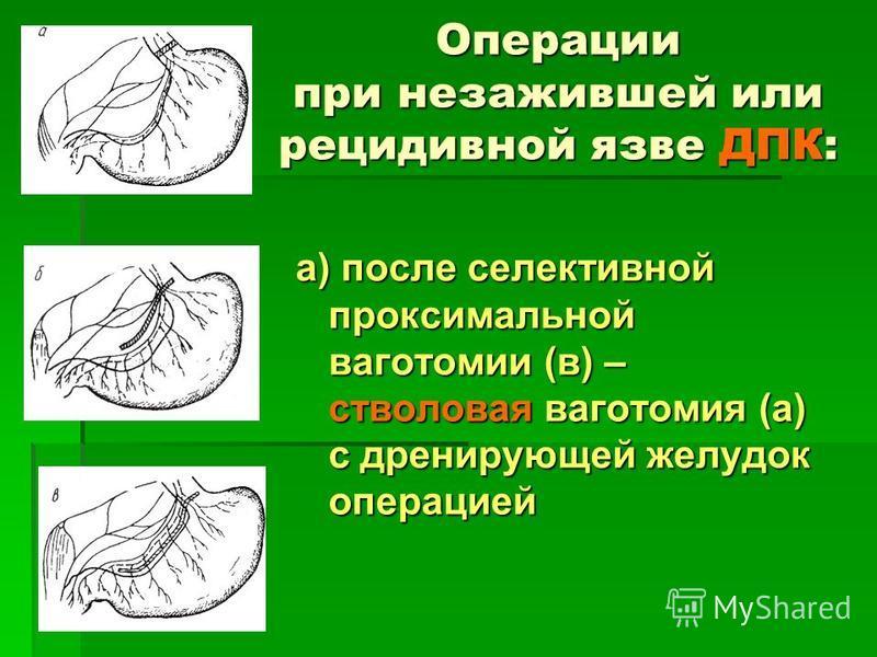 Операции при незажившей или рецидивной язве ДПК: а) после селективной проксимальной ваготомии (в) – стволовая ваготомия (а) с дренирующей желудок операцией