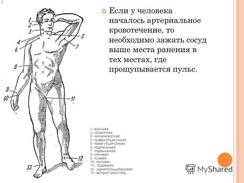 Если у человека началось артериальное кровотечение, то необходимо зажать сосуд выше места ранения в тех местах, где прощупывается пульс. 1 - височная; 2 - затылочная; 3 - нижнечелюстная; 4 - правая общая сонная; 5 - левая общая сонная; 6 - подключичн