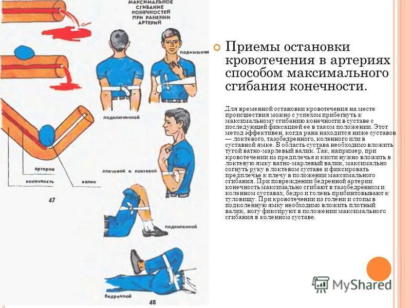 Приемы остановки кровотечения в артериях способом максимального сгибания конечности. Для временной остановки кровотечения на месте происшествия можно с успехом прибегнуть к максимальному сгибанию конечности в суставе с последующей фиксацией ее в тако