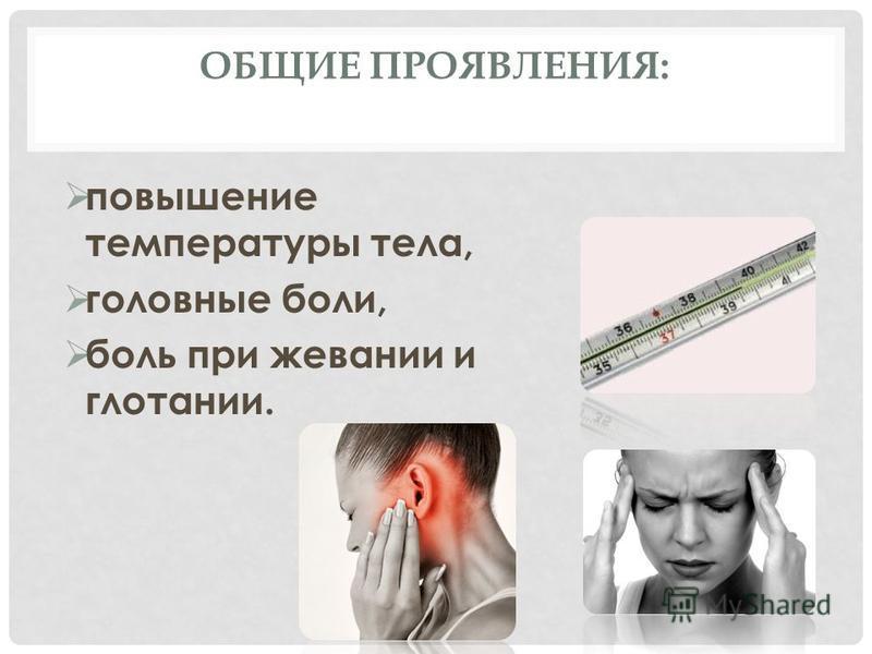 ОБЩИЕ ПРОЯВЛЕНИЯ: повышение температуры тела, головные боли, боль при жевании и глотании.