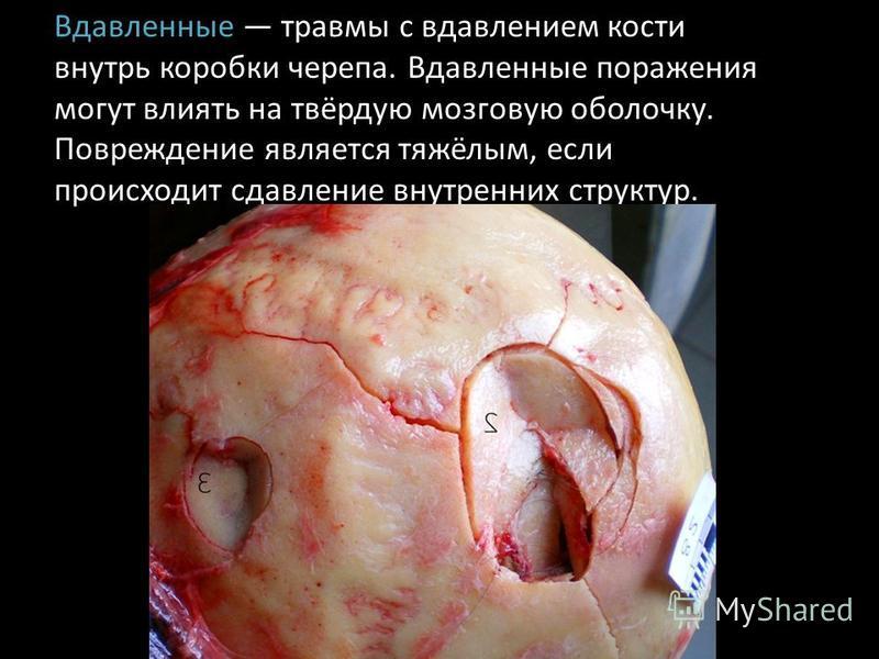 Вдавленные травмы с вдавлением кости внутрь коробки черепа. Вдавленные поражения могут влиять на твёрдую мозговую оболочку. Повреждение является тяжёлым, если происходит сдавление внутренних структур.