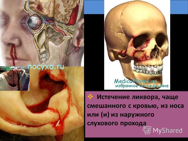 Истечение ликвора, чаще смешанного с кровью, из носа или (и) из наружного слухового прохода