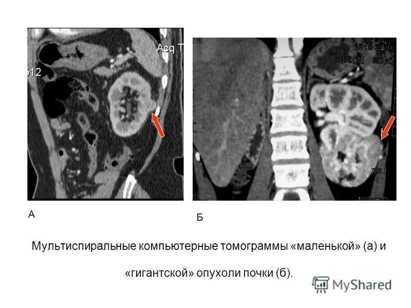 Мультиспиральные компьютерные томограммы «маленькой» (а) и «гигантской» опухоли почки (б). А Б