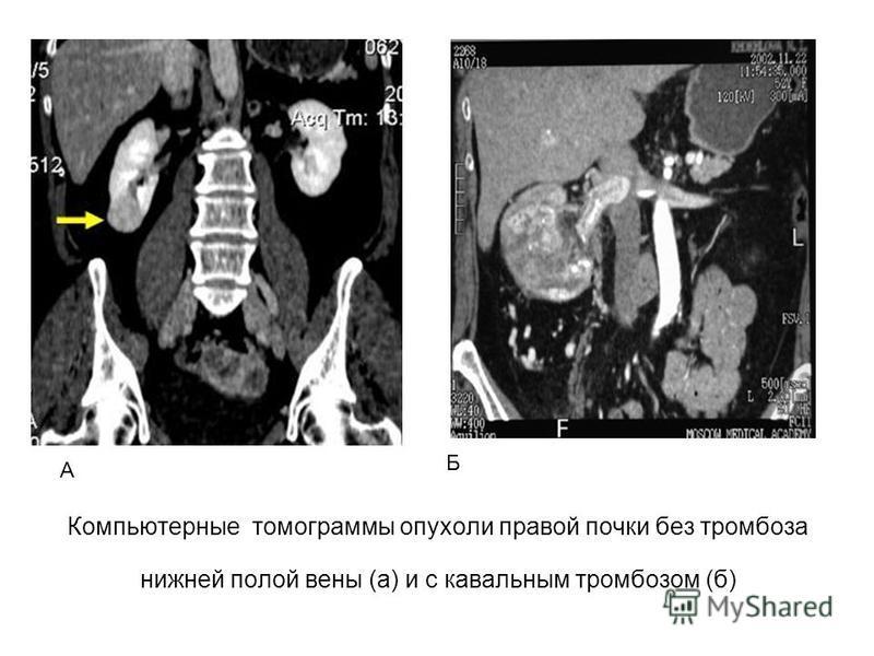 Компьютерные томограммы опухоли правой почки без тромбоза нижней полой вены (а) и с кавальным тромбозом (б) А Б