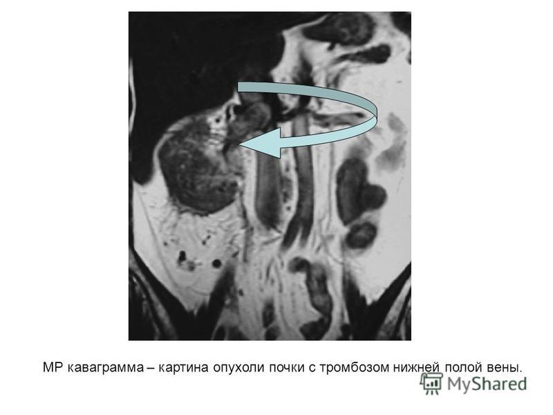 МР кавограмма – картина опухоли почки с тромбозом нижней полой вены.