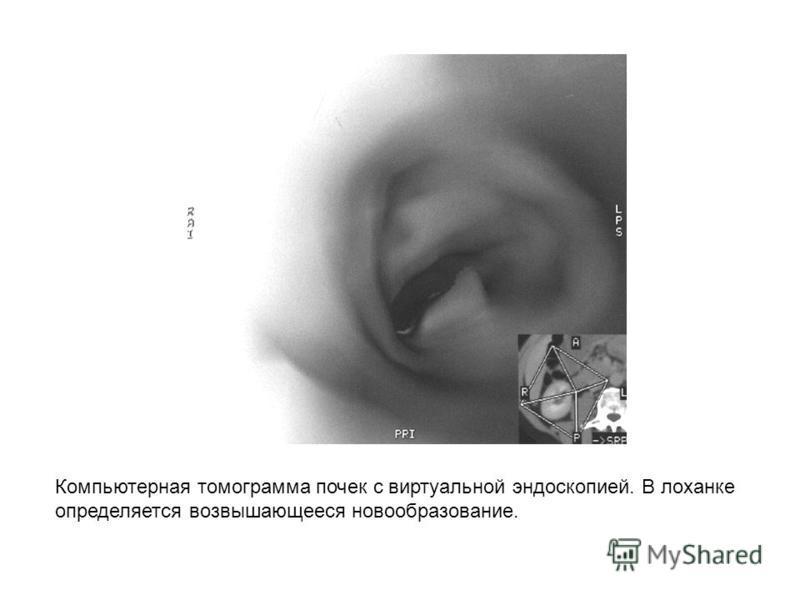 Компьютерная томограмма почек с виртуальной эндоскопией. В лоханке определяется возвышающееся новообразование.