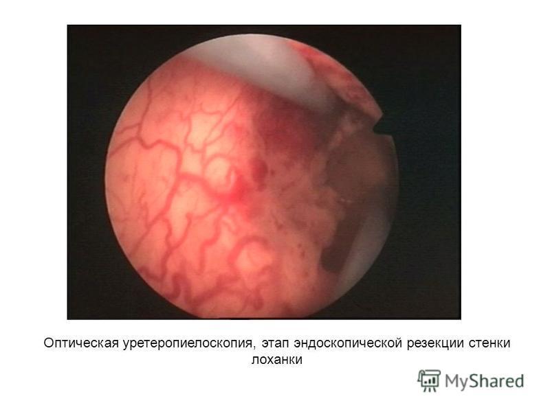 Оптическая уретеропиелоскопия, этап эндоскопической резекции стенки лоханки