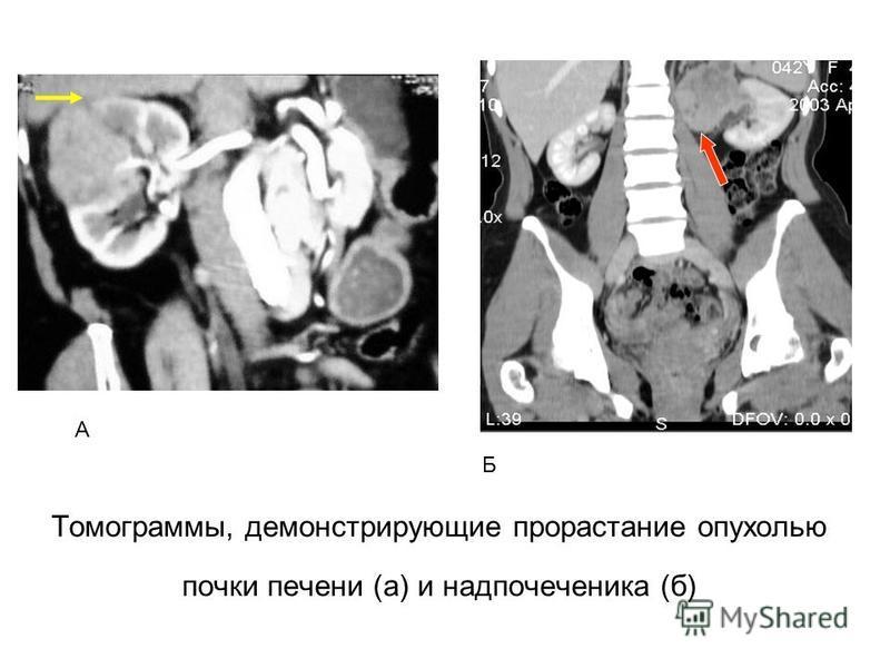 Томограммы, демонстрирующие прорастание опухолью почки печени (а) и надпочечника (б) А Б