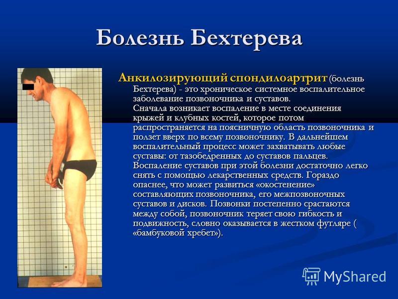 Болезнь Бехтерева Анкилозирующий спондилоартрит (болезнь Бехтерева) - это хроническое системное воспалительное заболевание позвоночника и суставов. Сначала возникает воспаление в месте соединения крыжей и клубных костей, которое потом распространяетс