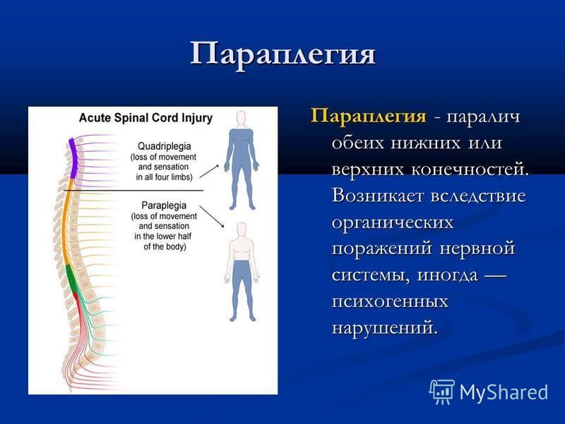 Параплегия Параплегия - паралич обеих нижних или верхних конечностей. Возникает вследствие органических поражений нервной системы, иногда психогенных нарушений.