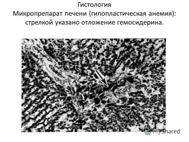 Гистология Микропрепарат печени (гипопластическая анемия): стрелкой указано отложение гемосидерина.