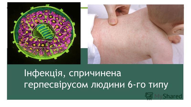 Інфекція, спричинена герпесвірусом людини 6-го типу