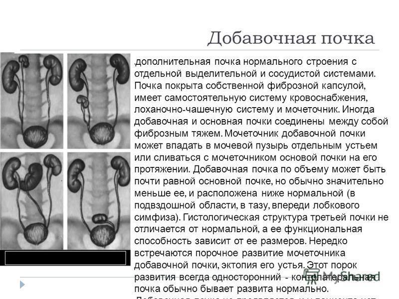 Добавочная почка дополнительная почка нормального строения с отдельной выделительной и сосудистой системами. Почка покрыта собственной фиброзной капсулой, имеет самостоятельную систему кровоснабжения, лоханочно - чашечную систему и мочеточник. Иногда