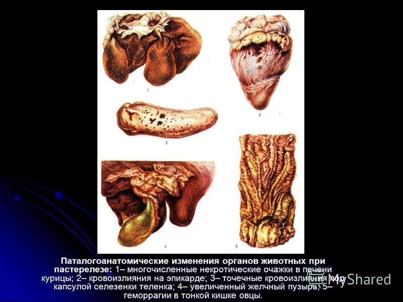 Паталогоанатомические изменения органов животных при пастерелезе: 1– многочисленные некротические очажки в печени курицы; 2– кровоизлияния на эпикарде; 3– точечные кровоизлияния под капсулой селезенки теленка; 4– увеличенный желчный пузырь; 5– геморр