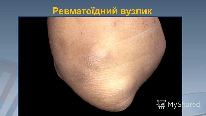 Ревматоїдний вузлик