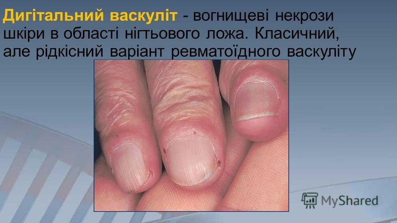 Дигітальний васкуліт - вогнищеві некрози шкіри в області нігтьового ложа. Класичний, але рідкісний варіант ревматоїдного васкуліту