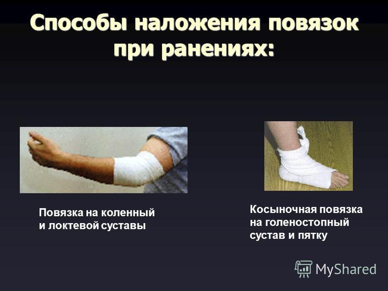 Способы наложения повязок при ранениях: Повязка на коленный и локтевой суставы Косыночная повязка на голеностопный сустав и пятку