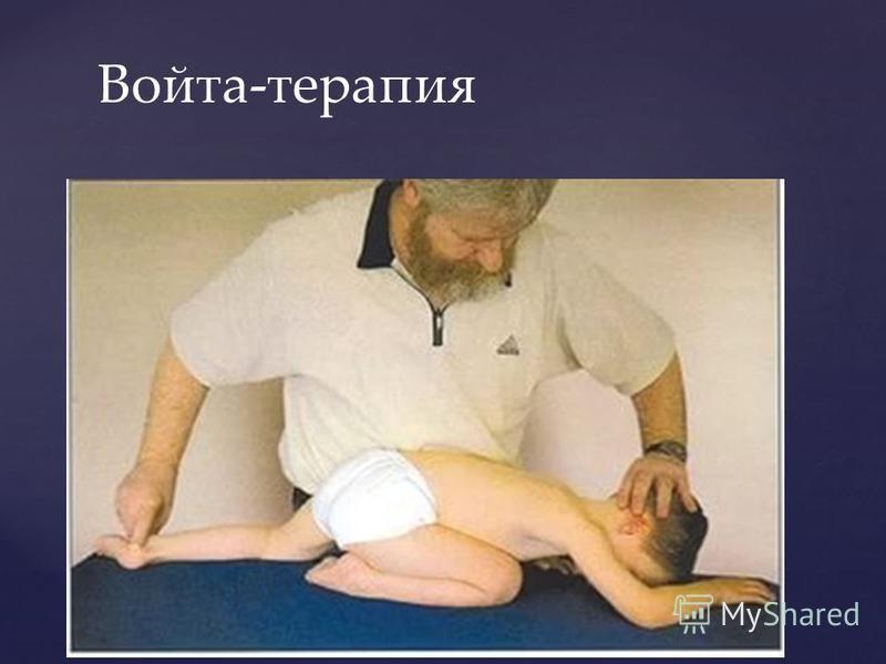 Войта-терапия