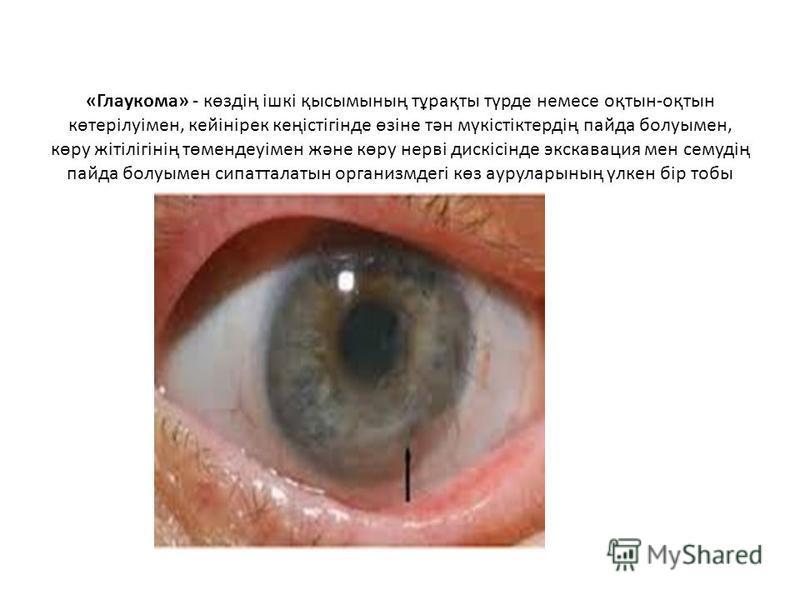 «Глаукома» - көздің ішкі қысымының тұрақты түрде немесе оқтын-оқтын көтерілуімен, кейінірек кеңістігінде өзіне тән мүкістіктердің пайда болуымен, көру жітілігінің төмендеуімен және көру нерві дискісінде экскавация мен семудің пайда болуымен сипаттала