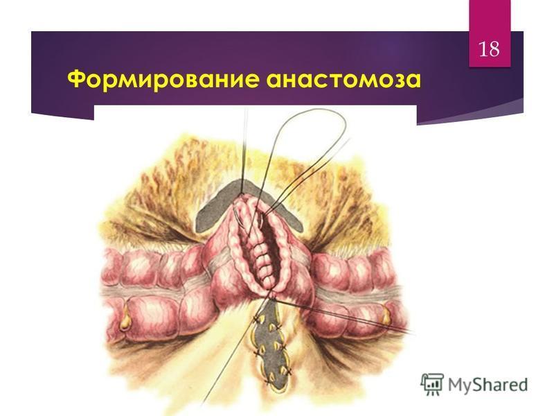 Формирование анастомоза 18