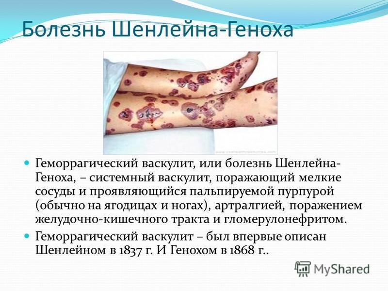 Болезнь Шенлейна-Геноха Геморрагический васкулит, или болезнь Шенлейна- Геноха, – системный васкулит, поражающий мелкие сосуды и проявляющийся пальпируемой пурпурой (обычно на ягодицах и ногах), артралгией, поражением желудочно-кишечного тракта и гло