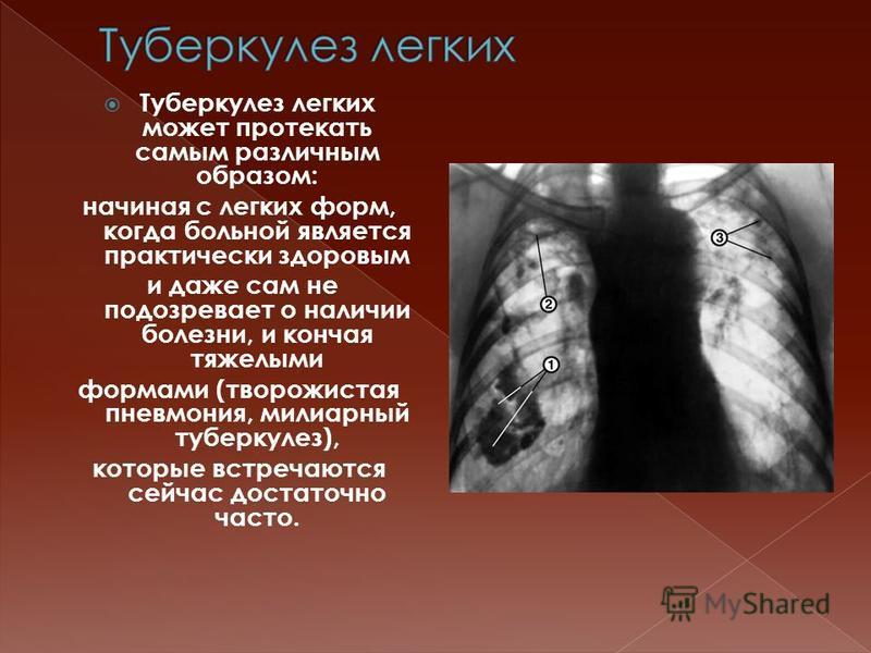 Туберкулез легких может протекать самым различным образом: начиная с легких форм, когда больной является практически здоровым и даже сам не подозревает о наличии болезни, и кончая тяжелыми формами (творожистая пневмония, милиарный туберкулез), которы