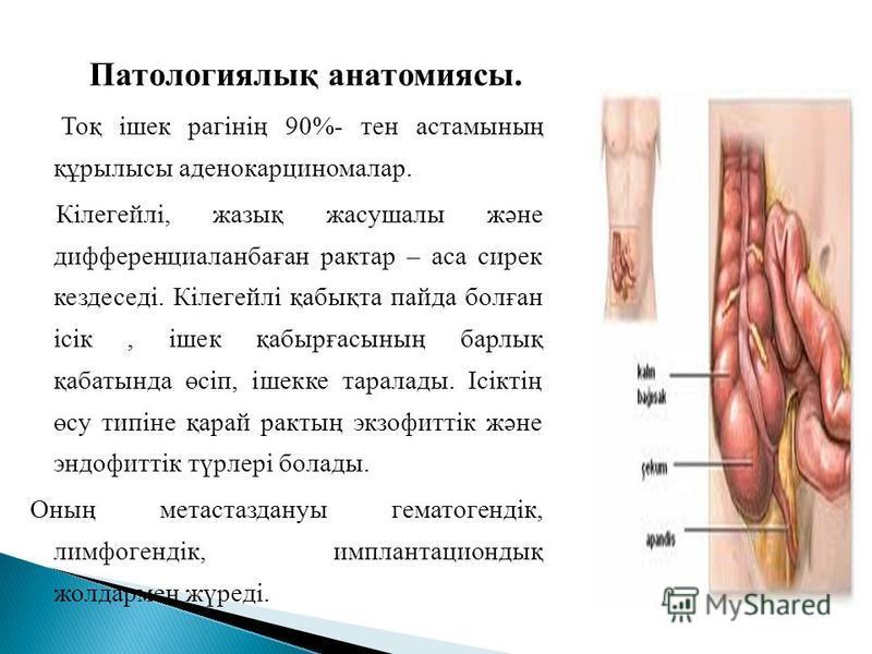 Патологиялық анатомиясы. Тоқ ішек рагінің 90%- тен астамының құрылысы аденокарциномалар. Кілегейлі, жазық жасушалы және дифференциаланбаған рактар – аса сирек кездеседі. Кілегейлі қабықта пайда болған ісік, ішек қабырғасының барлық қабатында өсіп, іш