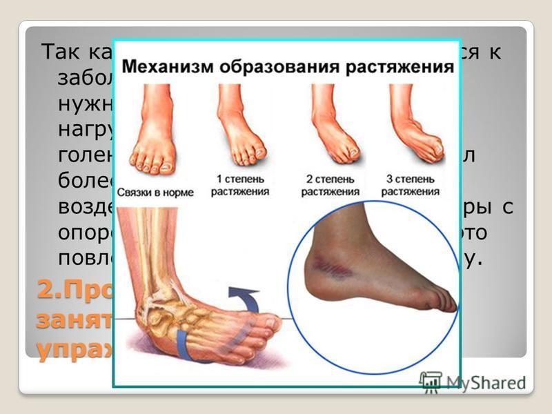 2. Противопоказания при занятиях физическими упражнениями. Так как данное заболевание относится к заболеванием нижних конечностей, нужно правильно рассчитывать нагрузку на травмированный ранее голеностоп. Если разрыв происходил более одного – двух ра