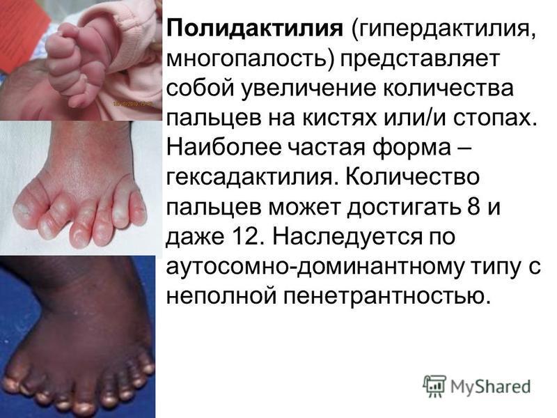 Полидактилия (гипердактилия, многопалость) представляет собой увеличение количества пальцев на кистях или/и стопах. Наиболее частая форма – гексадактилия. Количество пальцев может достигать 8 и даже 12. Наследуется по аутосомно-доминантному типу с не