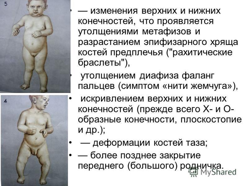 изменения верхних и нижних конечностей, что проявляется утолщениями метафизов и разрастанием эпифизарного хряща костей предплечья (