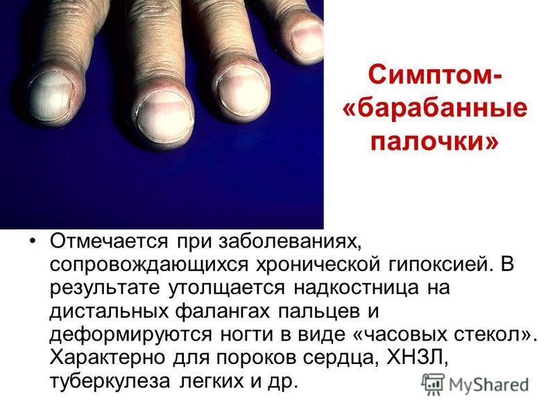 Симптом- «барабанные палочки» Отмечается при заболеваниях, сопровождающихся хронической гипоксией. В результате утолщается надкостница на дистальных фалангах пальцев и деформируются ногти в виде «часовых стекол». Характерно для пороков сердца, ХНЗЛ,