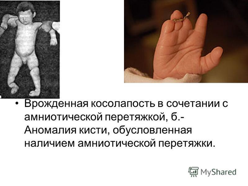 Врожденная косолапость в сочетании с амниотической перетяжкой, б.- Аномалия кисти, обусловленная наличием амниотической перетяжки.