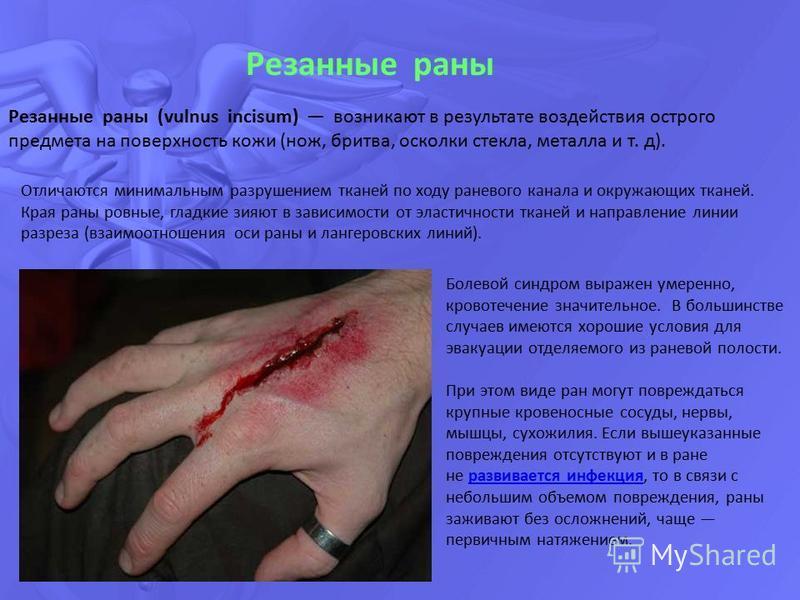 Резанные раны Резанные раны (vulnus incisum) возникают в результате воздействия острого предмета на поверхность кожи (нож, бритва, осколки стекла, металла и т. д). Отличаются минимальным разрушением тканей по ходу раневого канала и окружающих тканей.