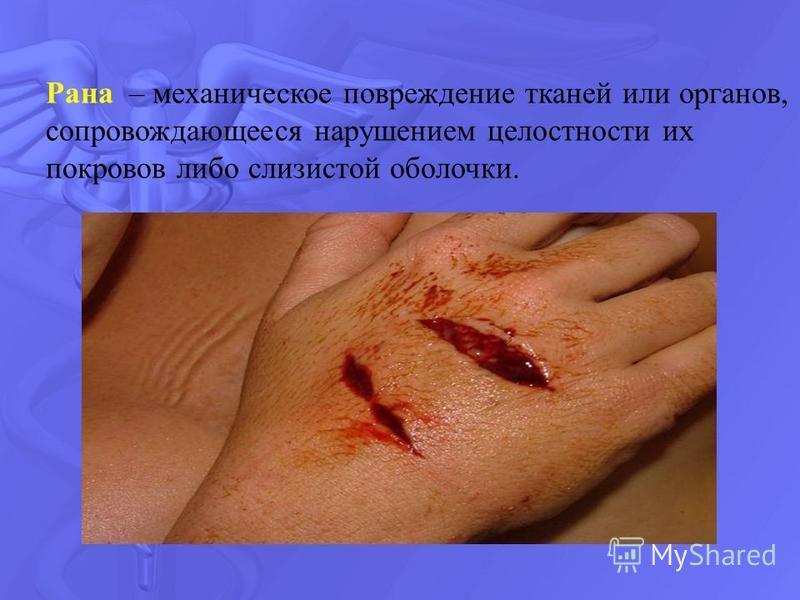 Рана – механическое повреждение тканей или органов, сопровождающееся нарушением целостности их покровов либо слизистой оболочки.